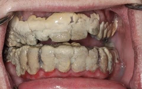 20 años sin limpiarse los dientes
