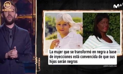 La mujer que se hizo negra con una operación, vuelve a ser noticia