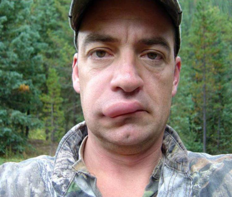 Las picaduras de las avispas son el botox gratuito