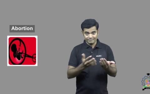 Aborto en lenguaje de signos
