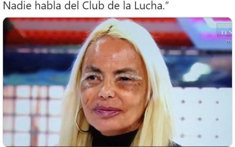 Entre Kiko y Leticia, empiezo a sospechar que hay un supervillano-cirujano suelto por Madrid...