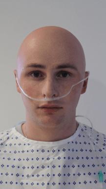 360 degree bald cap