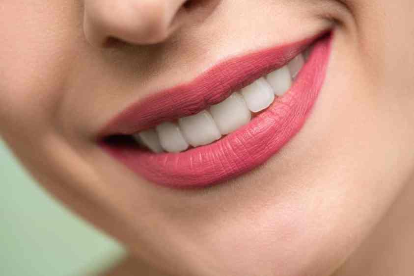 woman with healthy mouth smiling