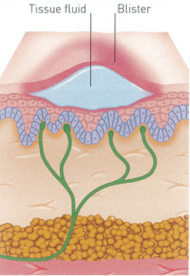 Partial-thickness burn type