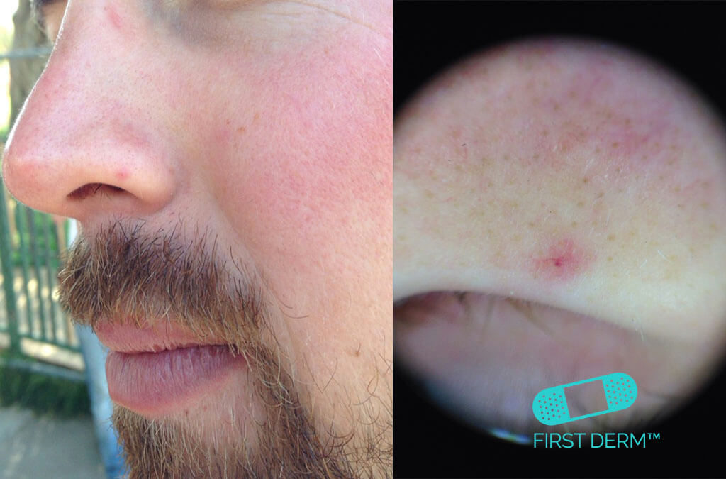 Red spots on skin Pictures causes treatment  Online