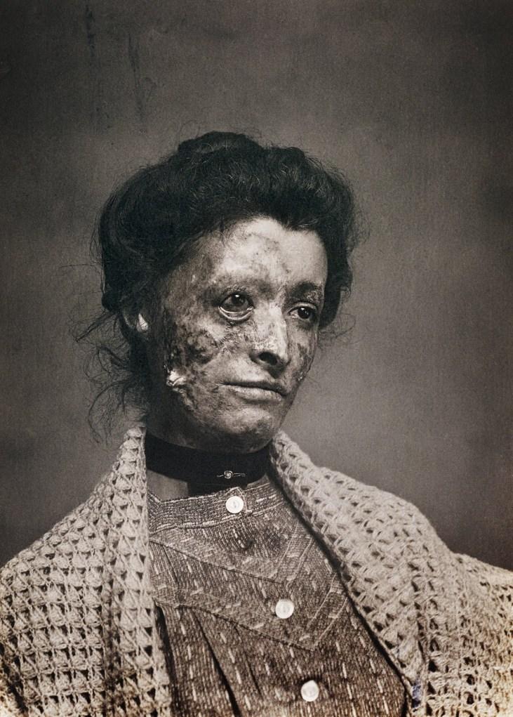 Prostytucja-syfilis-wiktoriański-Londyn-19-wiek