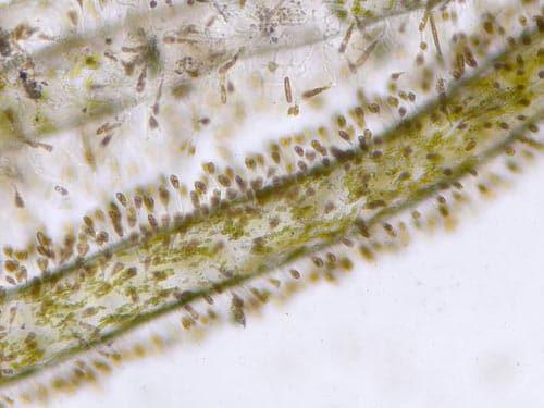 Hairline algae seen under microscope at 100x enlargement.