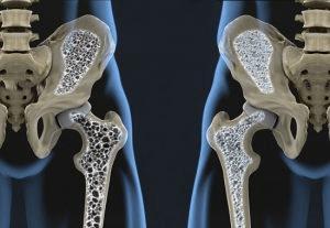 Efectos dosis-respuesta de ejercicio sobre la densidad mineral ósea en mujeres posmenopáusicas