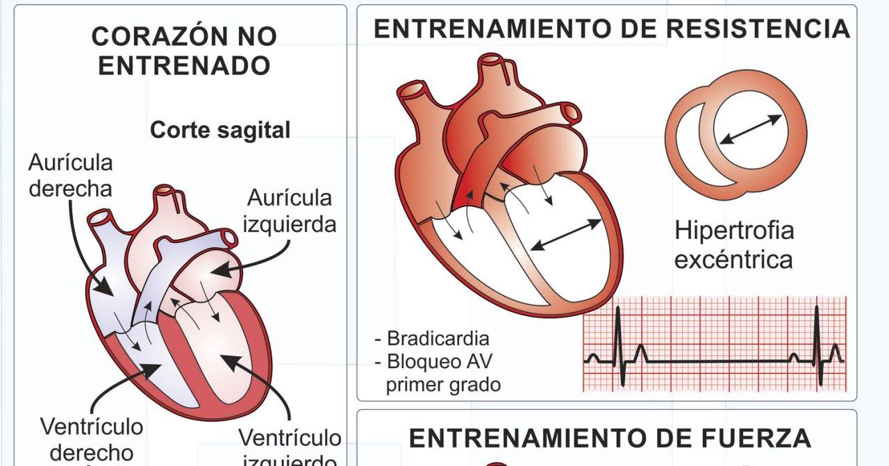 Infografía - Adaptaciones cardiacas al entrenamiento