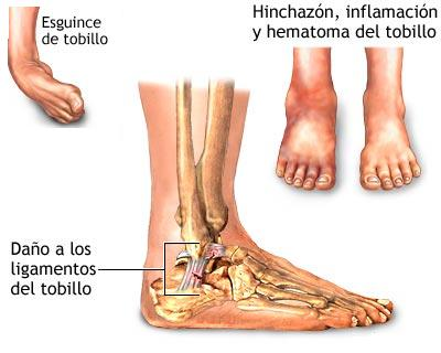 top of foot pain diagram club car precedent battery wiring esguince de tobillo, fisioterapia las tablas. - fisiolution
