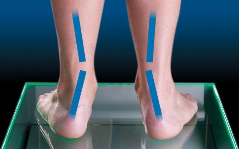 Ejemplo de pie pronador, donde el peso se focaliza en la parte interior del pie