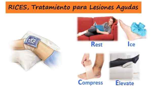 Tratamiento RICES en Fisioterapia