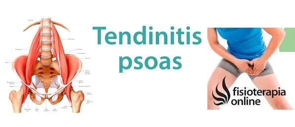Tendinitis del Músculo iliopsoas