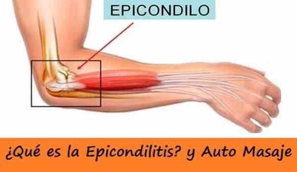 Automasaje para la Epicondilitis