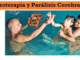 Hidroterapia y Paralisis Cerebral