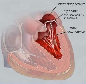 Шумы в сердце пролапс клапана