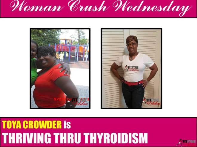 Toya Thyroid2