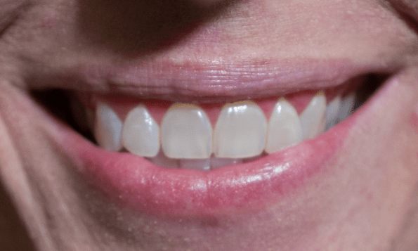After 15 applications of smile brilliant