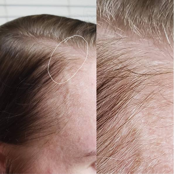 zoomed in photo of hairline