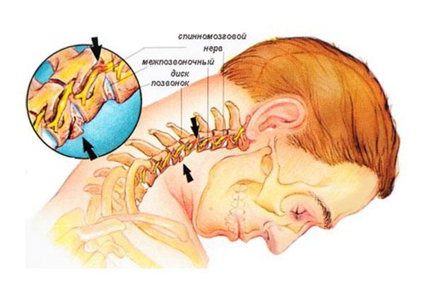 Preparate pentru osteochondroza gâtului - Comprese eficiente pentru osteocondroza cervicală