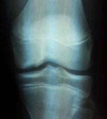 Ostéochondrite disséquante du condyle fémoral médial chez un garçon de 13 ans.
