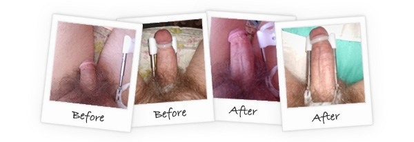penis enlargement ProExtender-before-and-after-reviews
