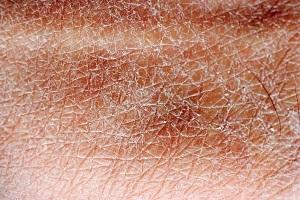 skin texture