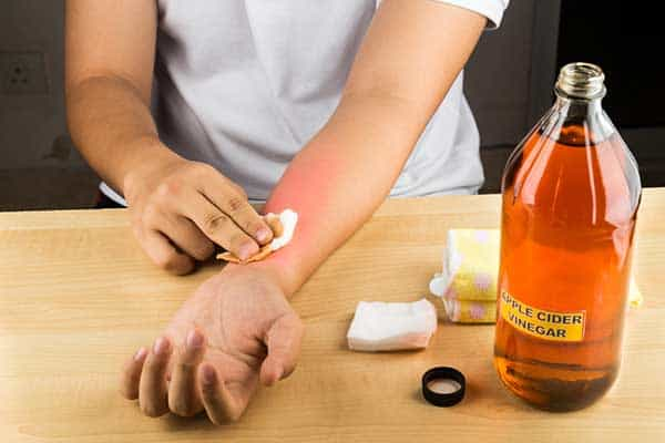 ACV for skin issues