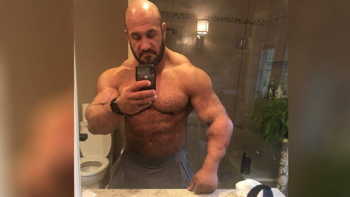 Antoine Vaillant Shares Post Bicep Surgery Photos (Graphic)