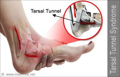 Afbeeldingsresultaat voor tarsaal tunnel syndroom