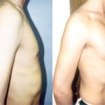 Muscle Implants
