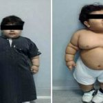 2 Year Old is the Youngest to Have Gastric Bypass