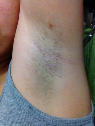 how to get rid of discoloration in arm pit