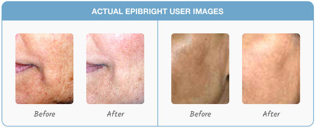 Epibright Case Studies After Before
