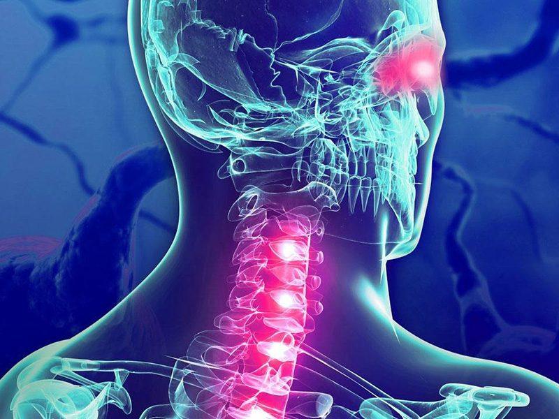 Fizio GP - Multipla skleroza