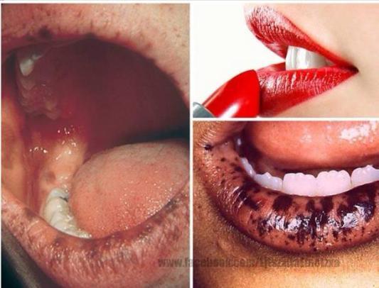 lead lips