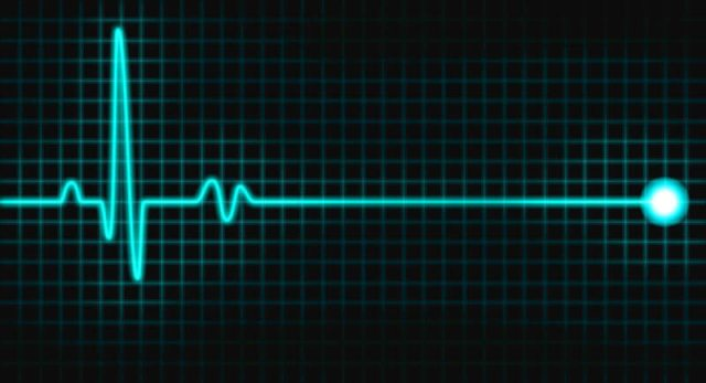 Pulsi i zemrës, vdekja