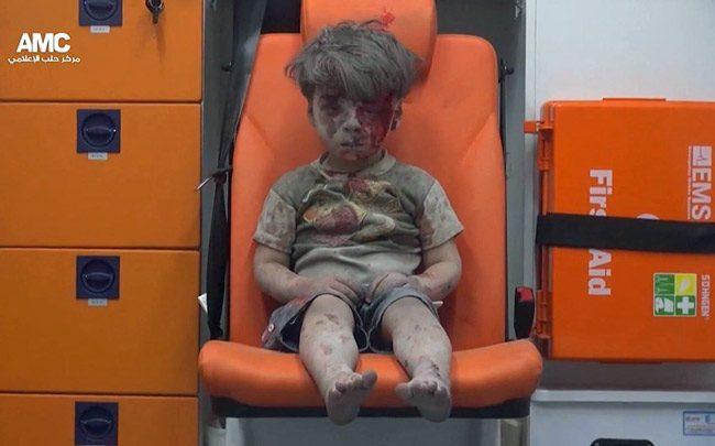syrian boy shock