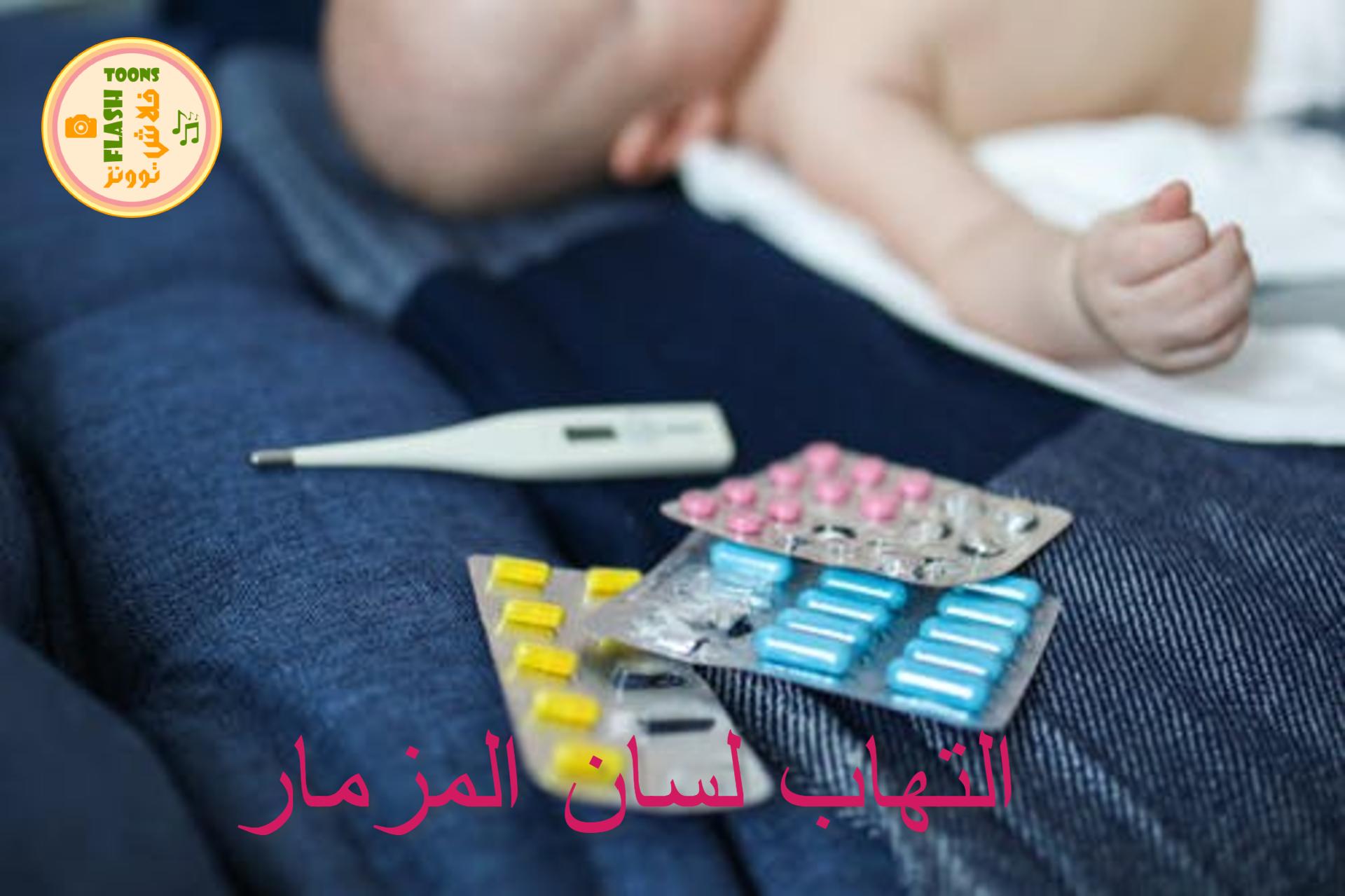 التهاب لسان المزمار