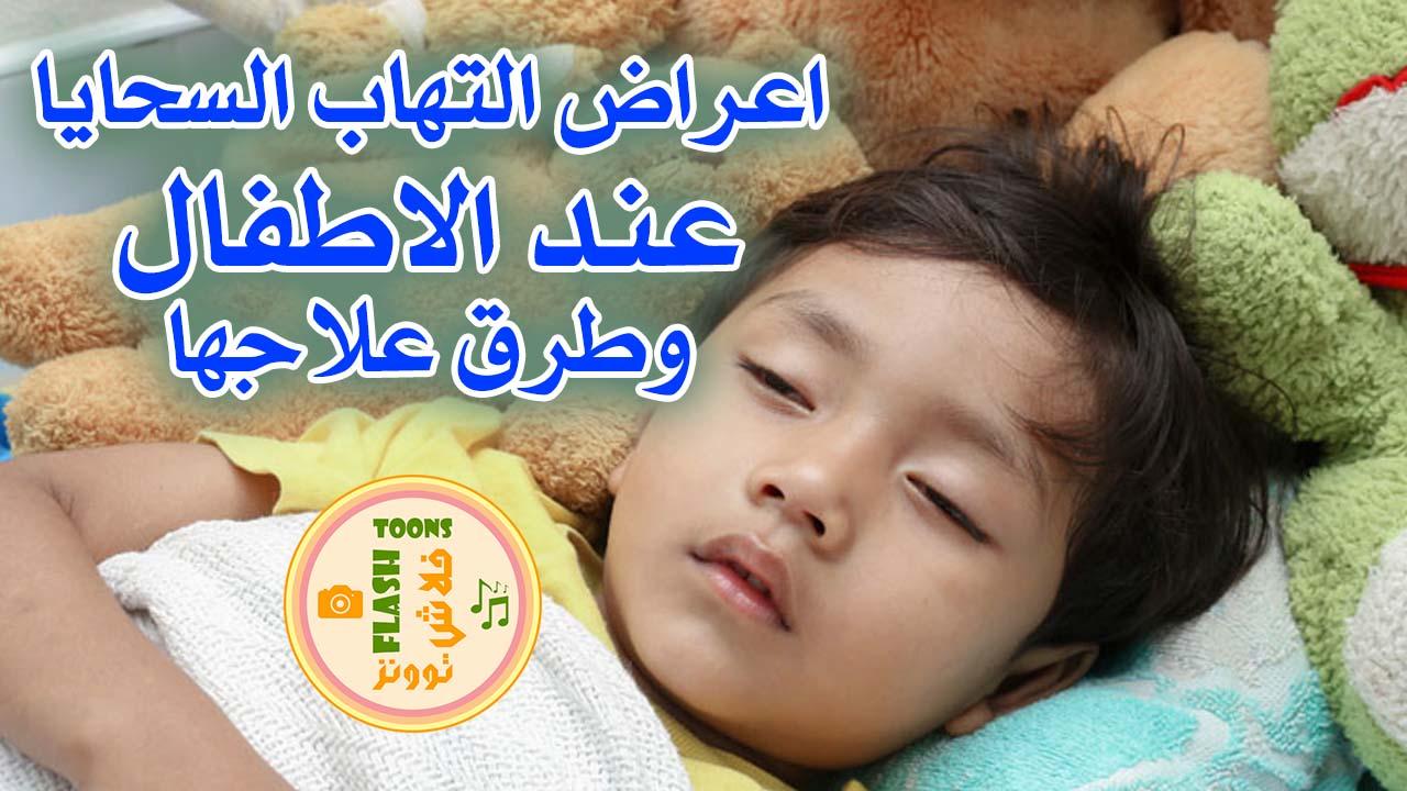 التهابات السحايا عند الاطفال