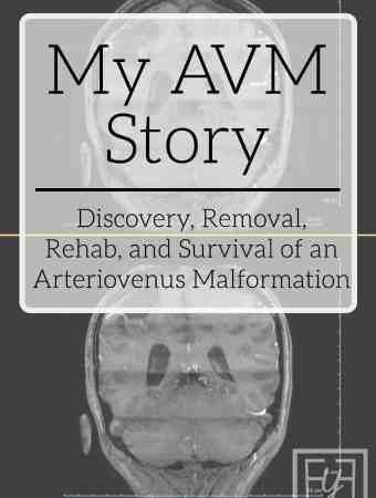 my AVM Story
