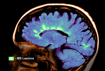 princ_rm_photo_of_mri_scan_showing_ms_lesions