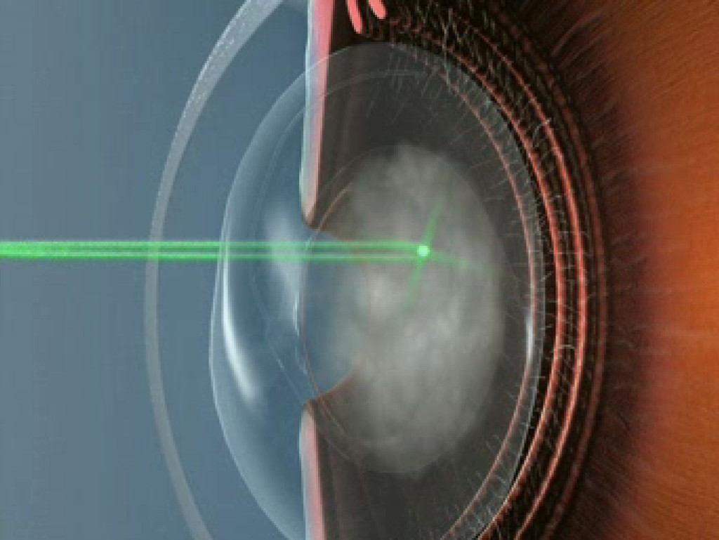Laser Surgery: Floaters Floaters After Yag Laser Surgery