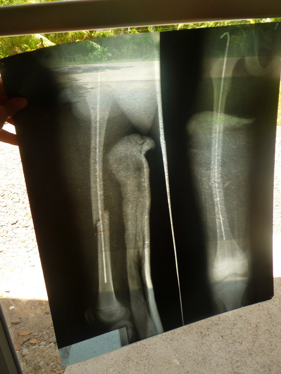 Failed Fixation & Osteomyelitis