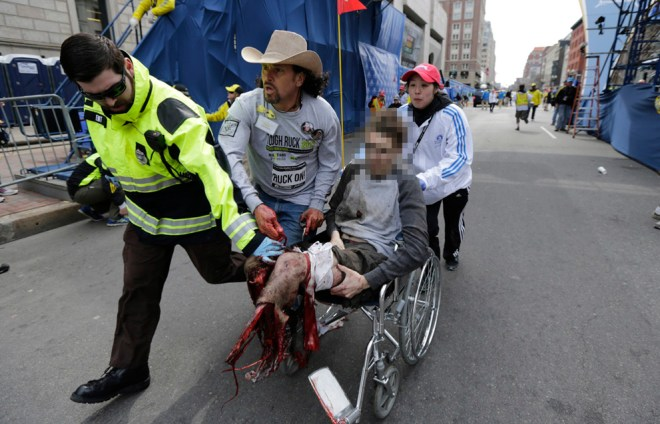 Boston-Marathon-Bombing-24