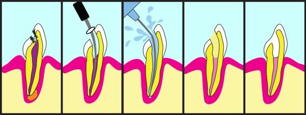 teeth and chronic pain
