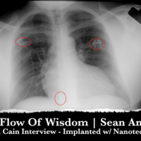 Richard Cain Interview Hour One: Implanted w/ Nanotechnology & proof of being a Targeted Individual