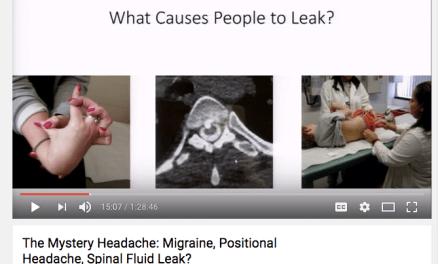 Do Fluoroquinolones Cause Cerebrospinal Fluid Leaks?