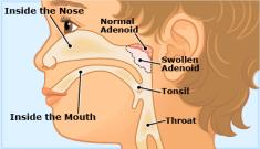 What do swollen adenoids look like?