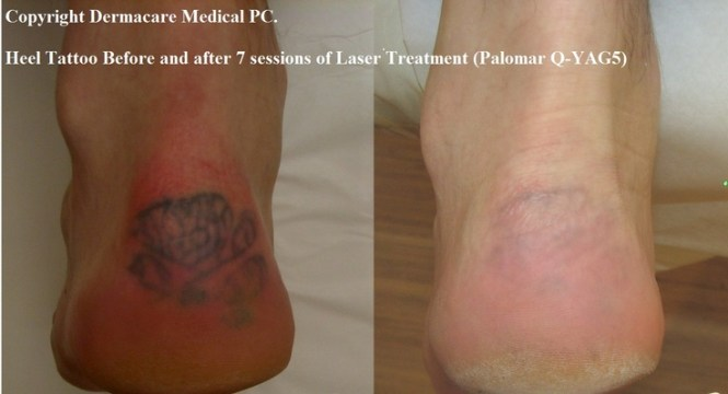 foot tattoo removal